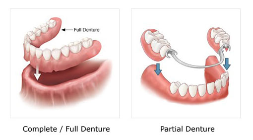 Dentures | Sharon Dental