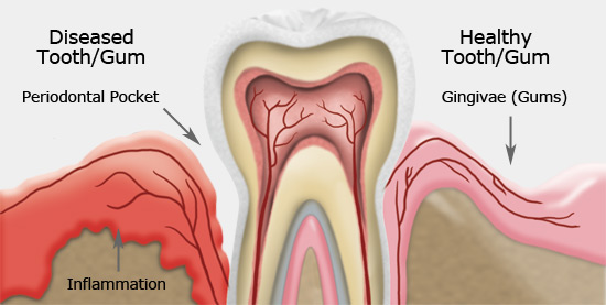 Gum Disease | Sharon Dental