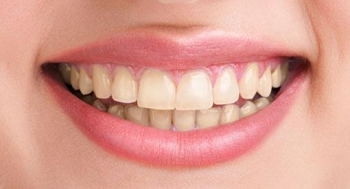 teeth-whitening-before