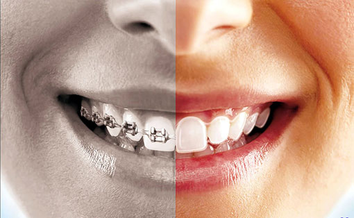 Metal Braces vs. Invisable Braces