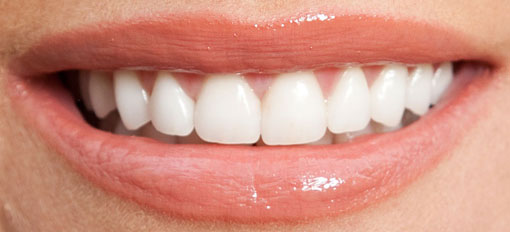 Porcelain-veneers_After