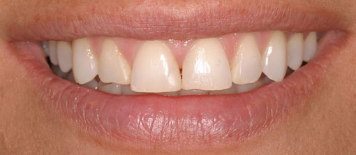Porcelain-veneers_Before
