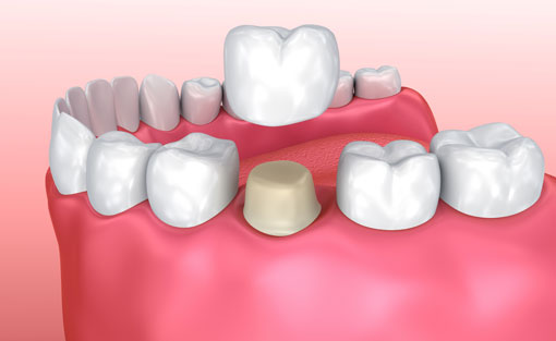 Dental Crowns | Sharon Dental