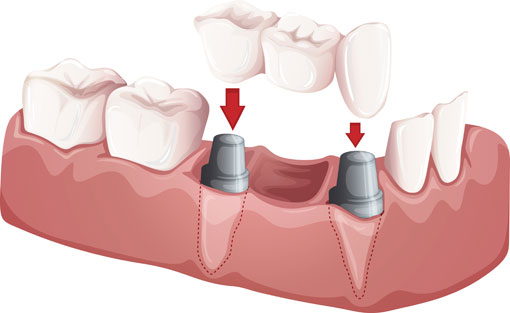 Dental Bridges | Sharon Dental